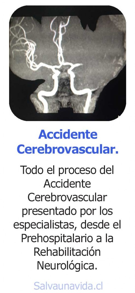 curso-accidente-cerebrovascular